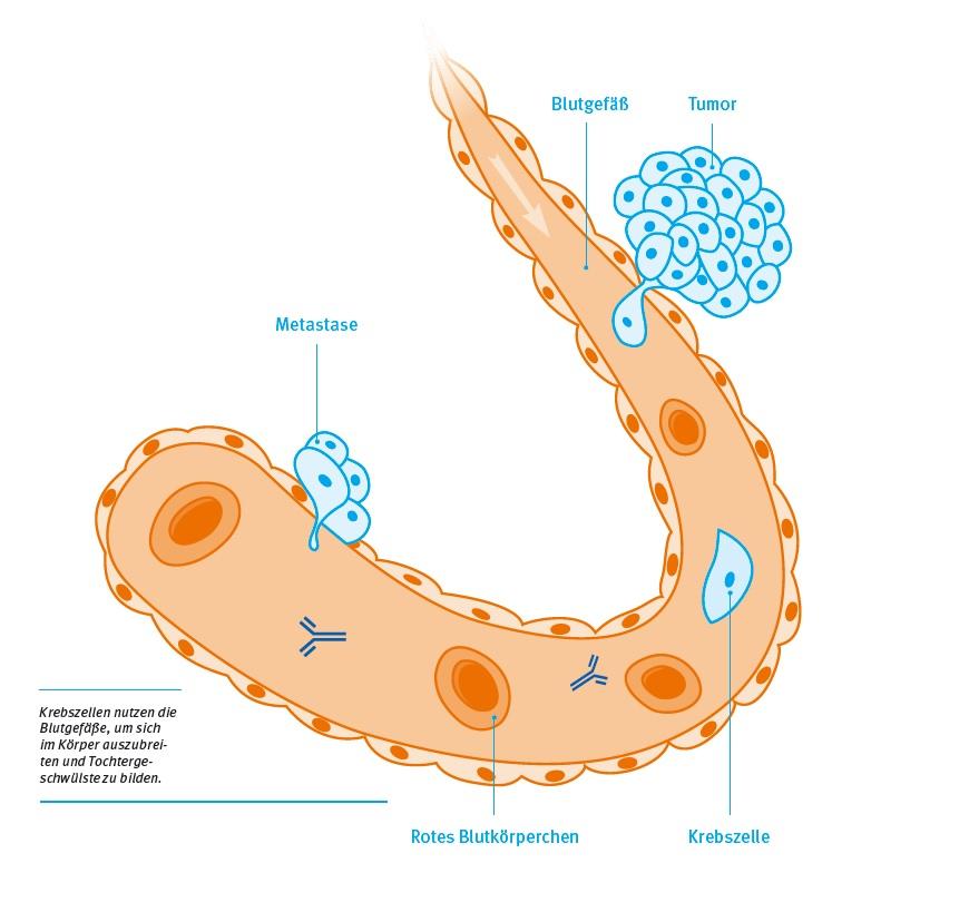 Metastasen verhindern