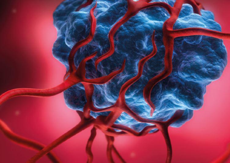 Wachstum von Tumoren hemmen
