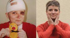 Tumoren im Kopf - Anja kaempft mit Humor
