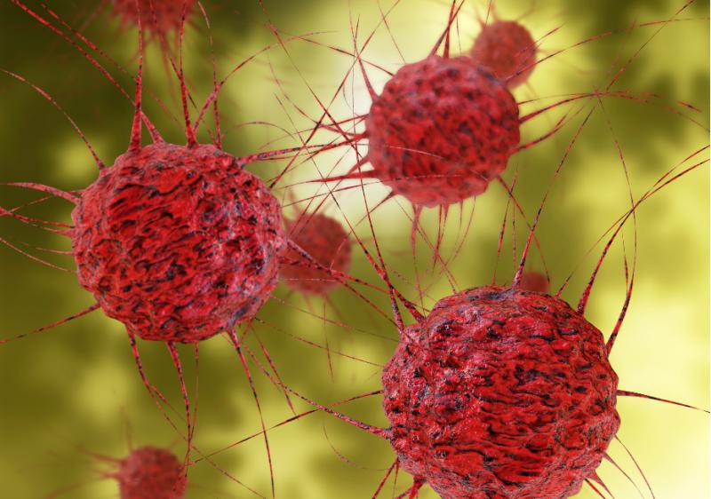 Darmkrebs Fakten