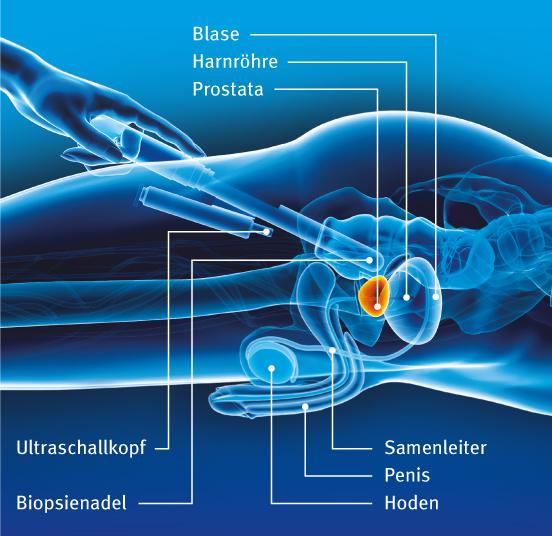 prostata biopsie wahrscheinlichkeit